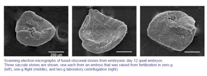 Fused Otoconial Ear Bones
